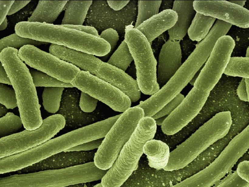 Elektronenmikroskopische Aufnahme von Bakterien
