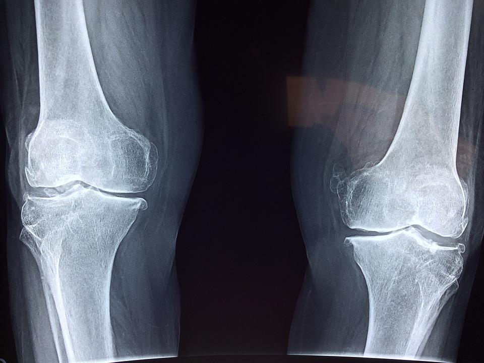 Foto: Röntgenaufnahme der Knie
